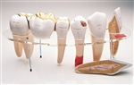 Dental Morphology 7-Part Series, 10x Life-size (0114-00) - DGA84