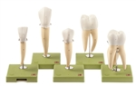SOMSO Teeth Models, Set of Five