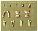 "SOMSO Case of Teeth ""Keep your Teeth healthy"""