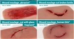 Wound Moulage Abrasion, Cut with Glass and Human Bite Kit