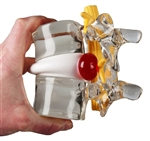 Lumbar Disc Herniated Model | Herniated Disc Simulator | Vertebral Simulator | Erler Zimmer Herniated Disc Simulator 4400
