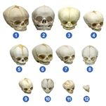 fetal skull models set of 12