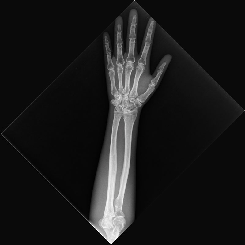 X-Ray Lower Arm Phantom, transparent Xray Arm