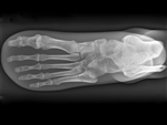X-Ray Phantom Foot, Opaque - EZ7235