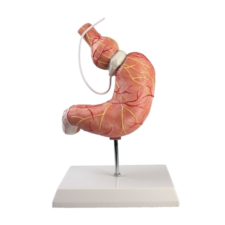 Stomach Model with Gastric Band - EZK82
