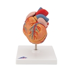 Classic Heart Model | Classic Heart Model with LVH | Classic Heart Model with Left Ventricular Hypertrophy (LVH), 2 part  | Classic Heart Model G04