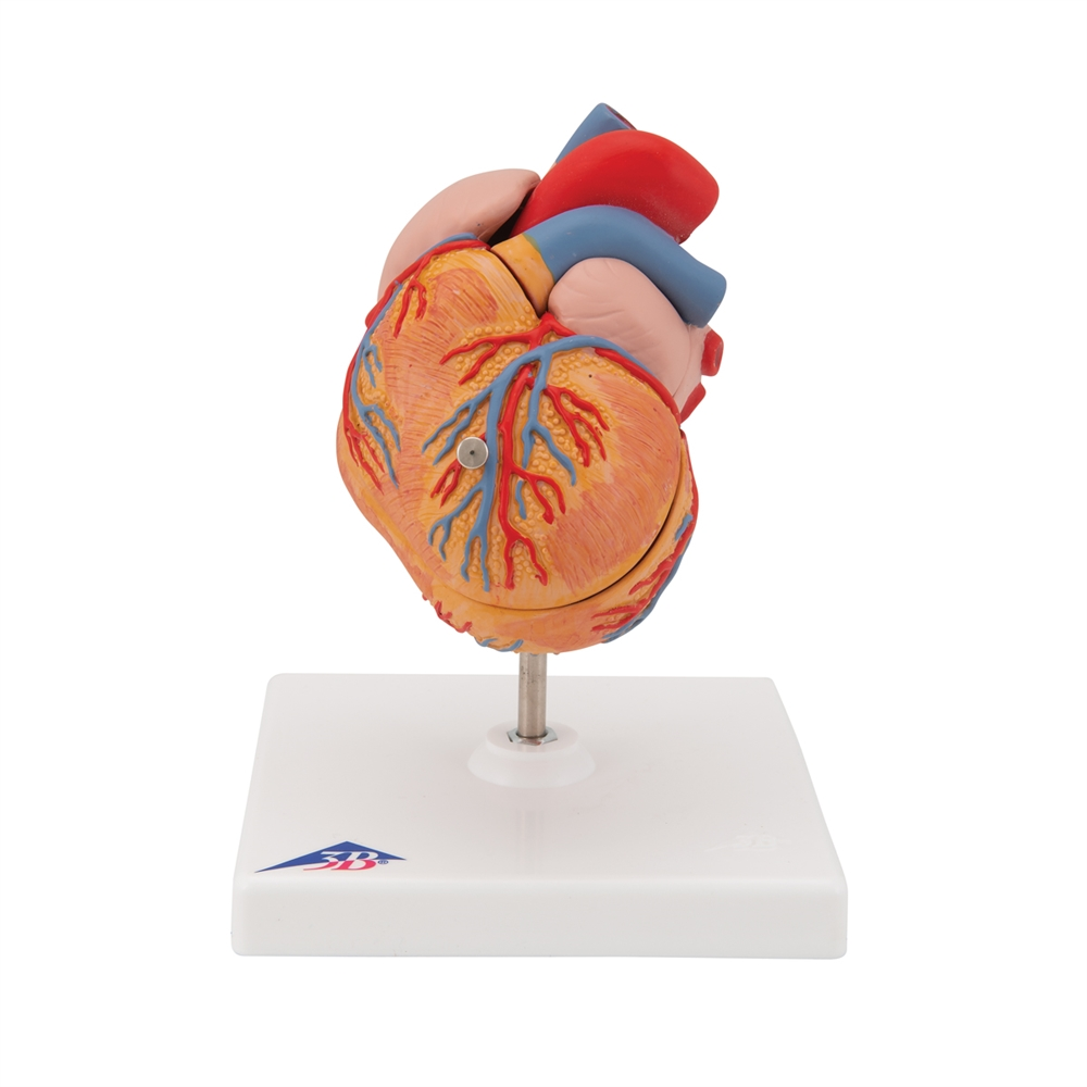 Classic Heart Model with Left Ventricular Hypertrophy (LVH), 2 part
