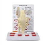 Meniscus Tears Knee Model