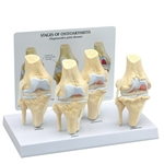 4-Stage Osteoarthritis Knee Model GP1100