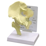 Basic Hip Joint Model GP1260