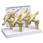 4-Stage Osteoarthritic Hip Joint Model GP1320