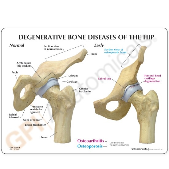 Osteoarthritic Hip Joint | 4-Stage Osteoarthritic Hip Joint Model