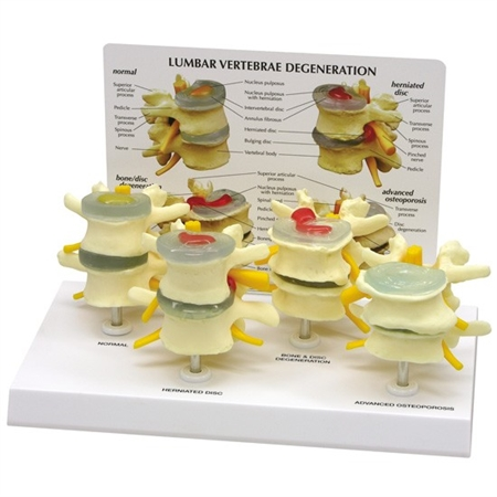 4-Stage of Osteoporosis Vertebrae Model GP1760