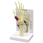 Hand and Wrist with Carpal Tunnel Syndrome Model GP1920