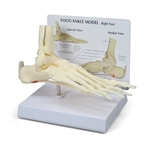 Foot-Ankle Model with Plantar Fasciitis GP1980