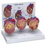 3 Mini Heart Set Models - GP2550