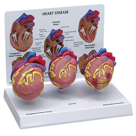 Normal, Congestive and Infarction Heart Set Model GP-2550