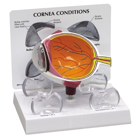 Cornea Eye Cross-Section Model GP2780