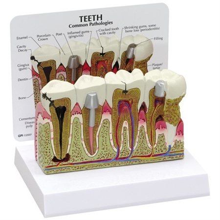 Teeth (oversize) Model GP2860