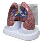 Lung Set Model with Pathologies - GP3110