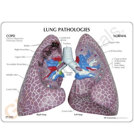 Lung Set Model with Pathologies