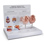 Enlarged COPD 4-piece Model - GP3130