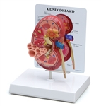 Anatomical Kidney Model (oversize) with Pathologies GP3260