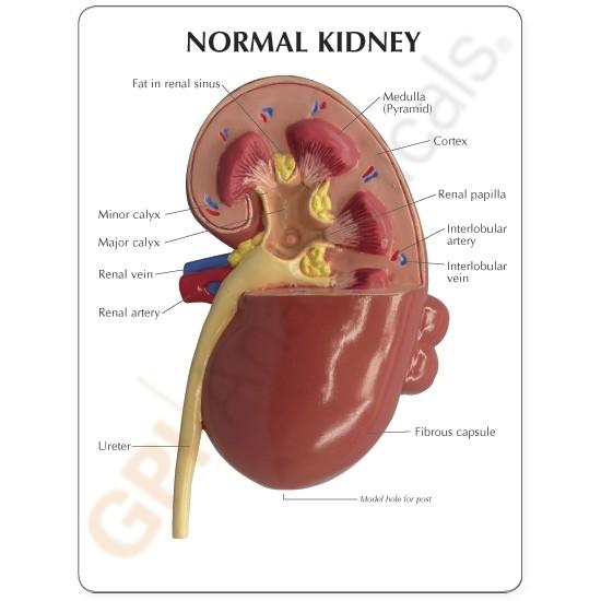 Kidney Model (oversize) with Pathologies