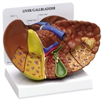 Diseased Liver (Cancer) Anatomy Model GP3310