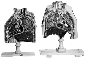 SOMSO Frontal Sections of the Chest