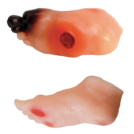 Diabetic Foot Model Set (2) HE-26160