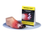 Smoked Foot Gangrene Model