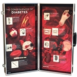 diabetes consequences 3d display