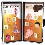 alcohol abuse consequences 3d display