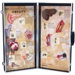 obesity consequences 3d display