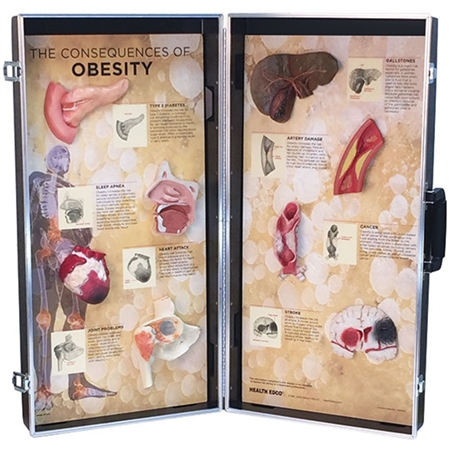 Obesity Consequences 3D Display - HE-78880