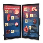 High Blood Pressure Consequences 3-D Display - HE-78927