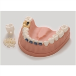 Dental Health Model with Soft Flexible Gums - Oversized - HE-79229
