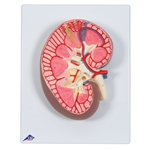 Anatomical Kidney Section Model, 3 times full-size K10