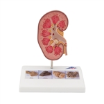 Kidney Stone Model | Model of the kidney stone | nephrolithiasis Model | urolithiasis model | nephrolithiasis anatomy model | urolithiasis anatomy model | Kidney Stone Model K29 | Buy 3B Scientific K29 Kidney Stone Model On Sale