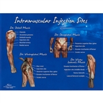 NEW Nasco I.M. - Intramuscular Injection Sites Chart