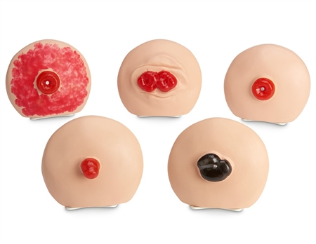 Life/form® Ostomy Care Training Models Set - LF00898U