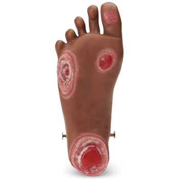 Optional Pressure Ulcer Foot for GERi and KERi, Medium Skin Tone