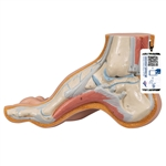 Hollow Foot (Pes Cavus) M32