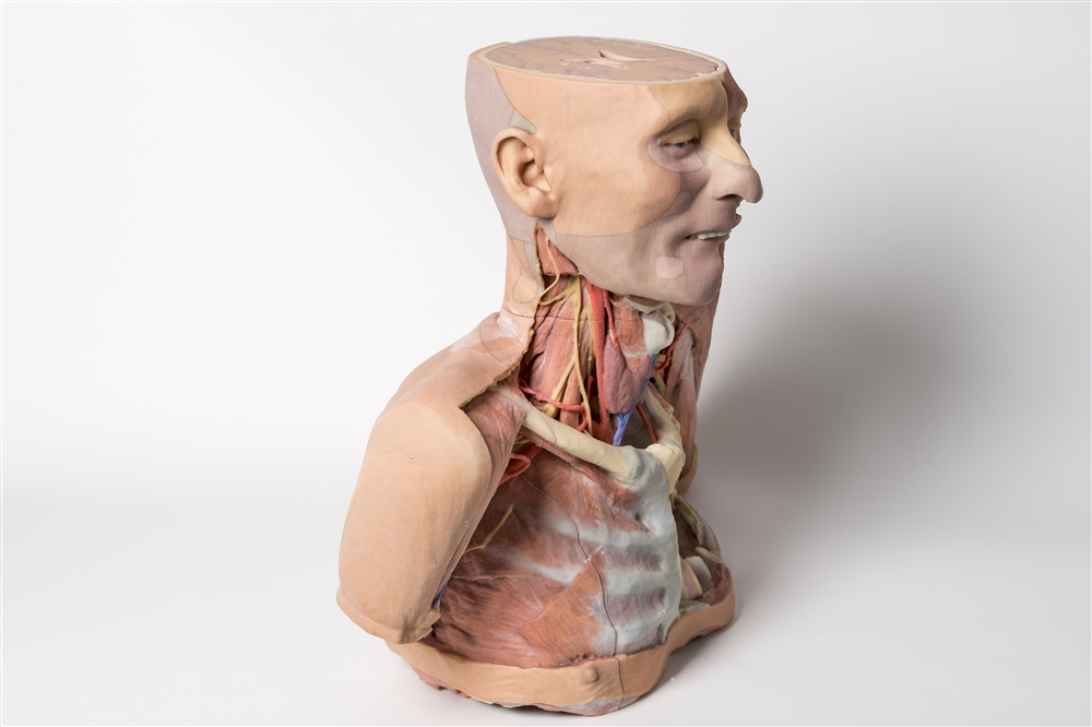 3D Printed Replica of the Head, Shoulder and Thorax with Angiosomes