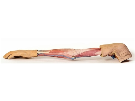3d printed upper limb replica