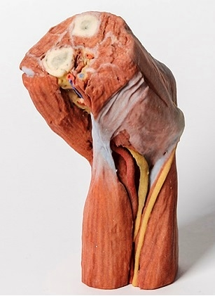 3D Printed Cubital fossa model with muscles, large nerves and the ...