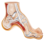 SOMSO High Arched Foot - Anatomical structure