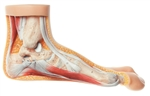 SOMSO Hallux Valgus Model - NS5