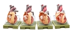 SOMSO Series of Models Representing Congenital Organic Heart Defects - OS7
